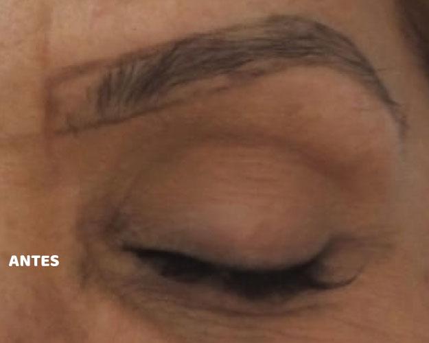 micropigmentacao-de-sobrancelha-falhada-antes